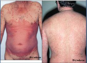 Pengobatan eritroderma sampai sembuh total